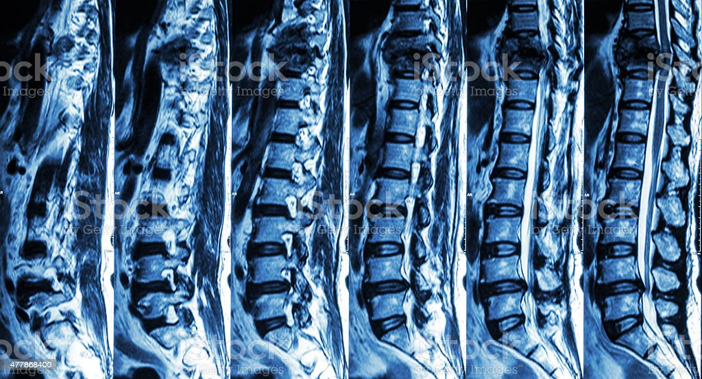 fracture of thoracic spine and compress spinal cord stock photo