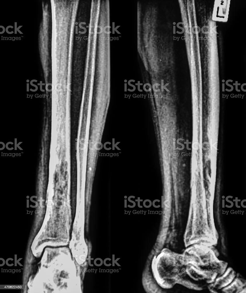 Fracture shaft of fibula bone stock photo