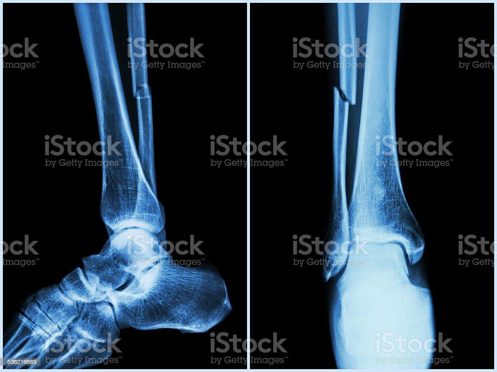 Fracture shaft of fibula bone ( leg bone ) stock photo
