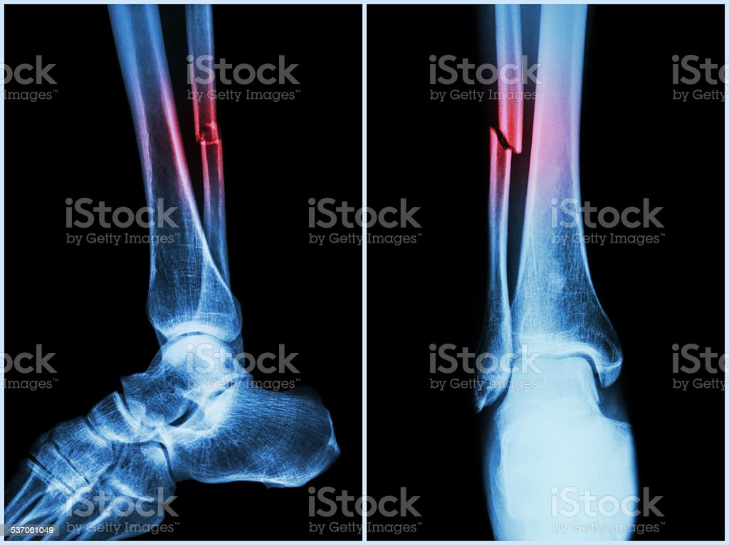 Fracture shaft of fibula bone ( leg bone ) stock photo