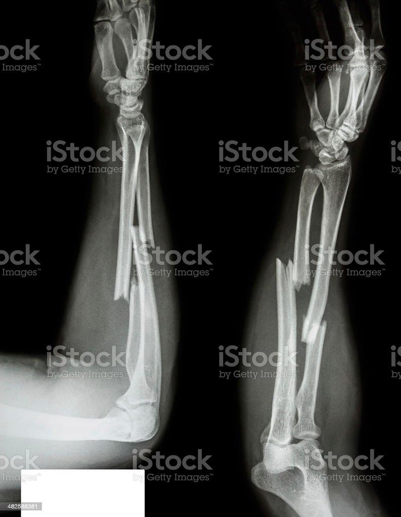 fracture shaft of radius & ulnar bone stock photo