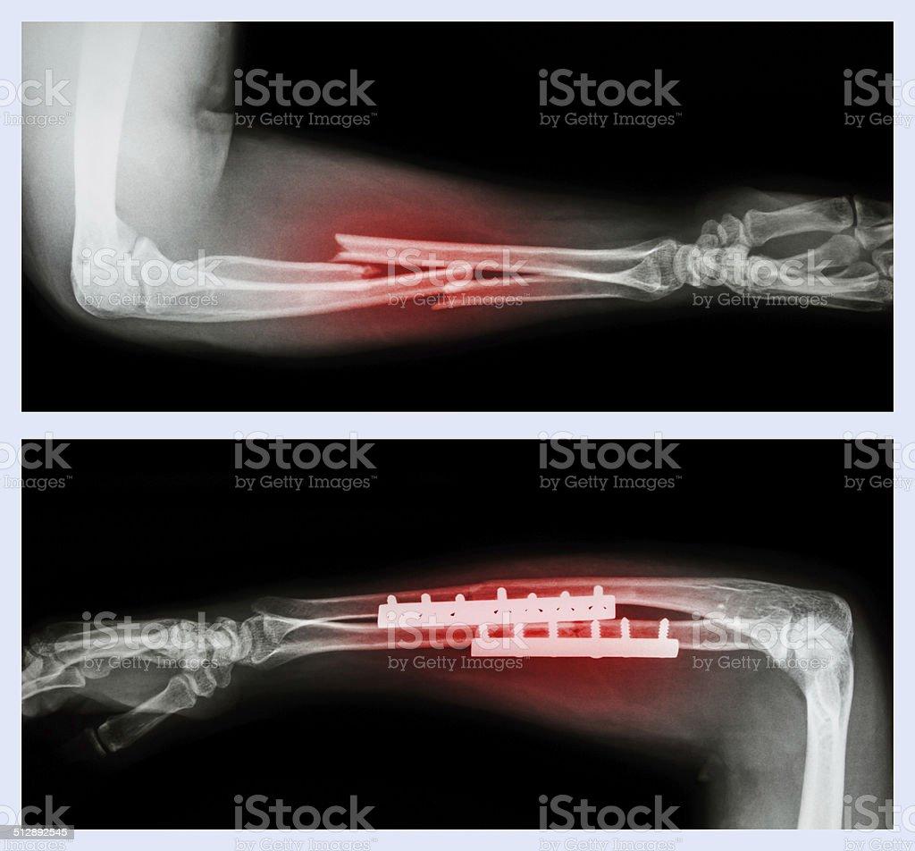 Fracture ulnar and radius (Forearm bone) stock photo