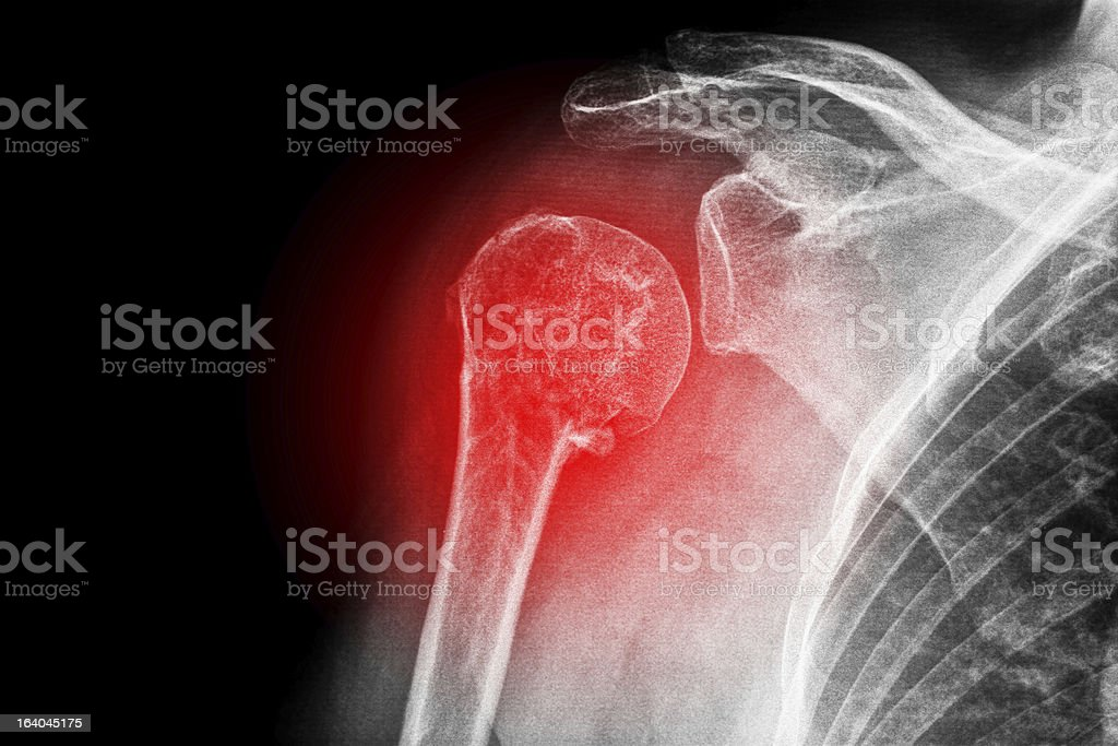 Fractured upper arm stock photo