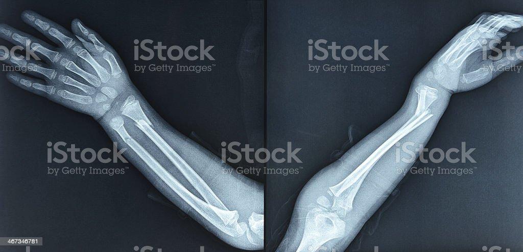 Fractures of the radius ulna stock photo