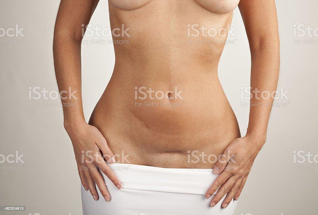 Frau, H?nde, Bauch mit Narben stock photo