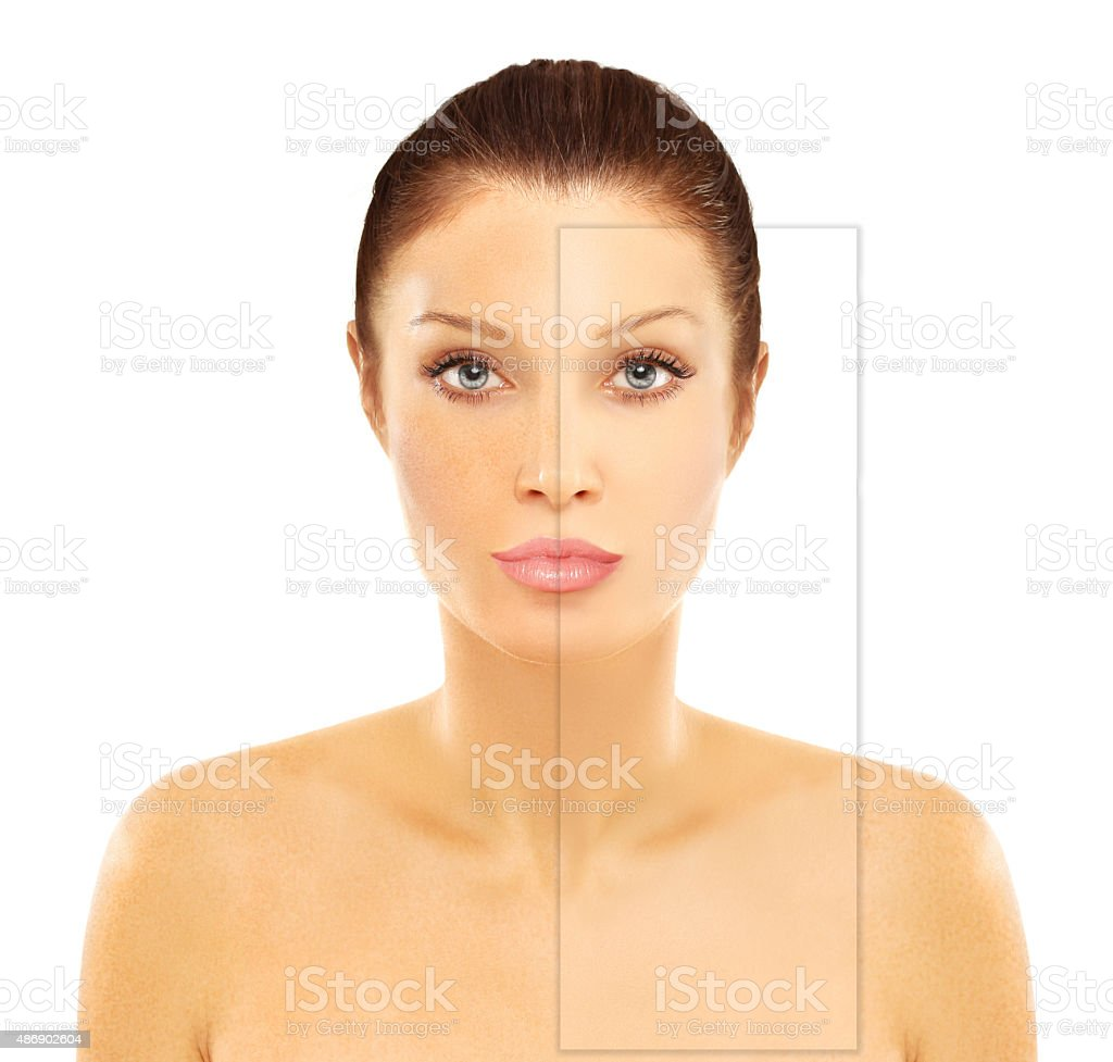 Freckles. Model's face divided in two parts. stock photo