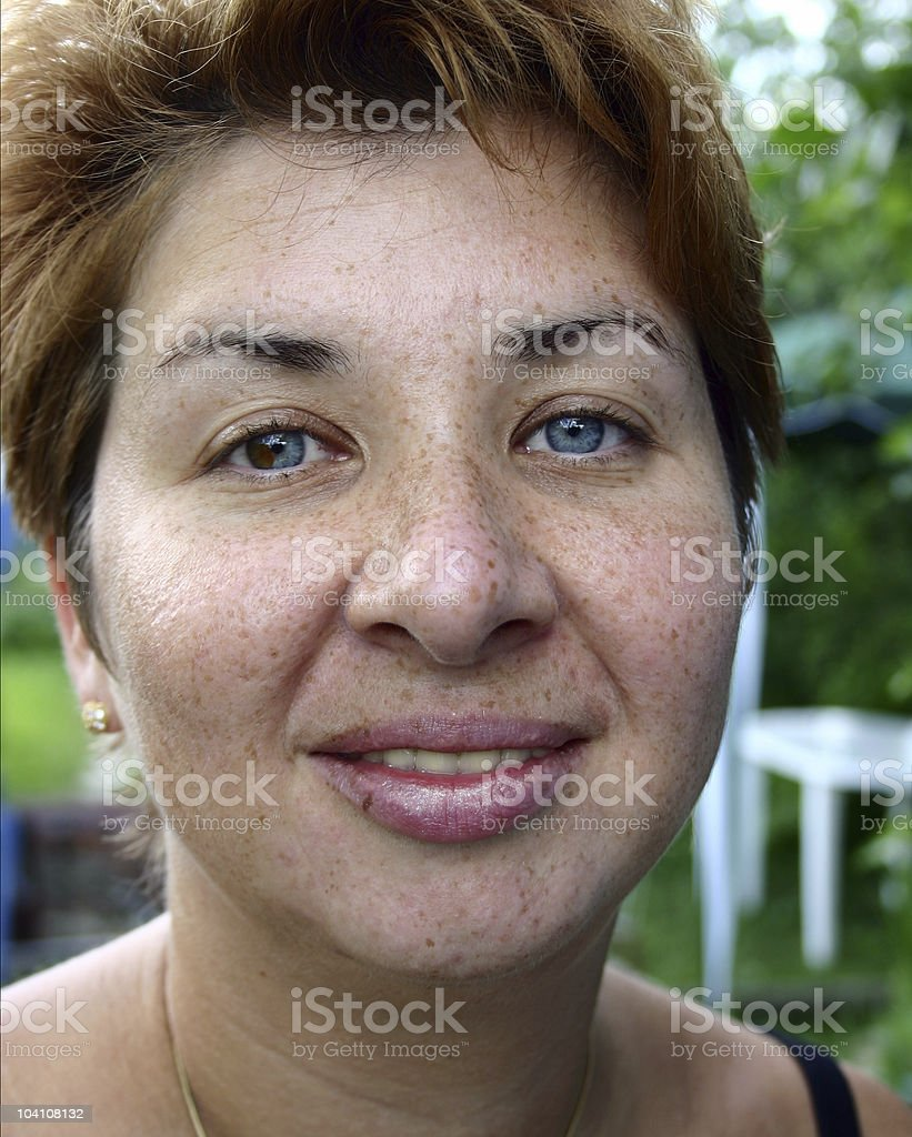 Freckles royalty-free stock photo