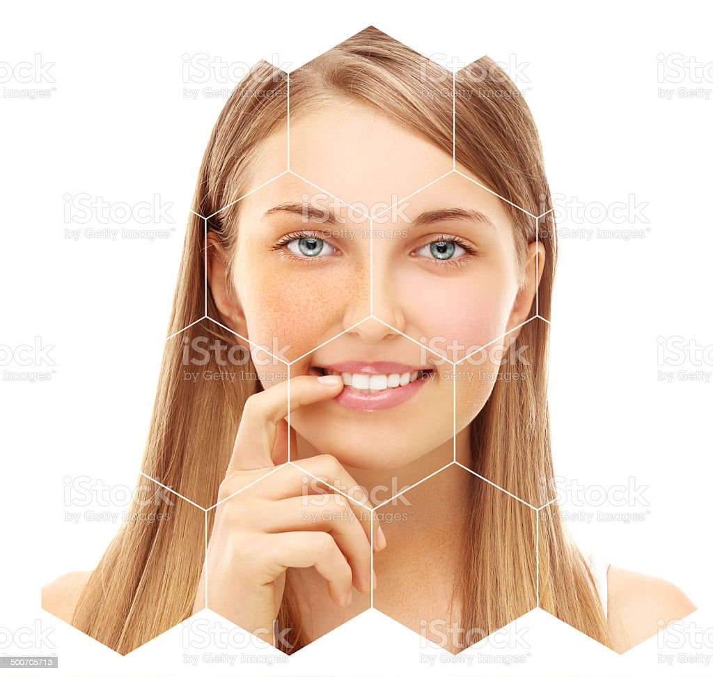 Freckles. stock photo