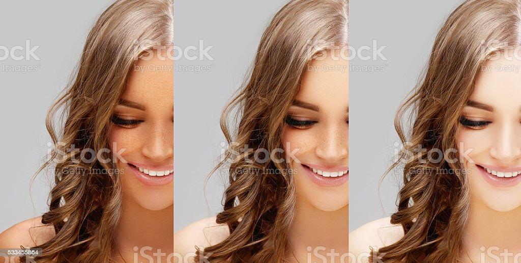 Freckles.Skin whitening,  lightening, bleaching stock photo