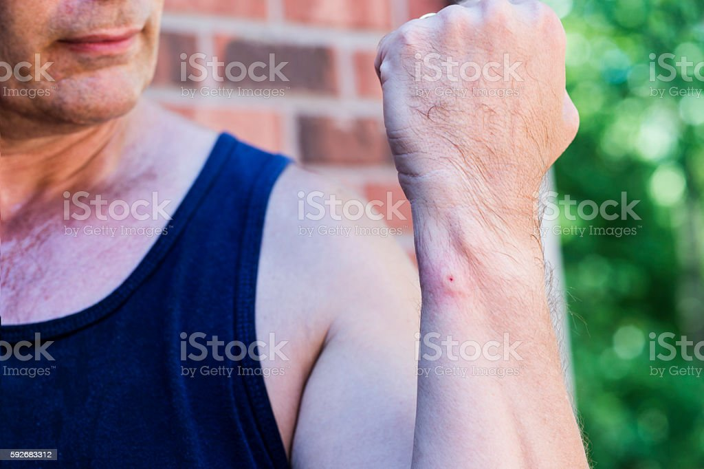 Fresh wasp bite on forearm of man stock photo