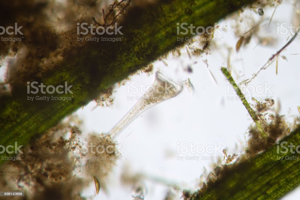 Freshwater protozoa microorganism Сiliates infusoria Stentor polymorphic filters water stock photo