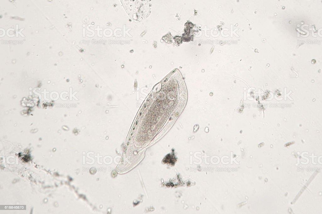Freshwater zooplankton probably protozoan ciliated Ciliophora stock photo