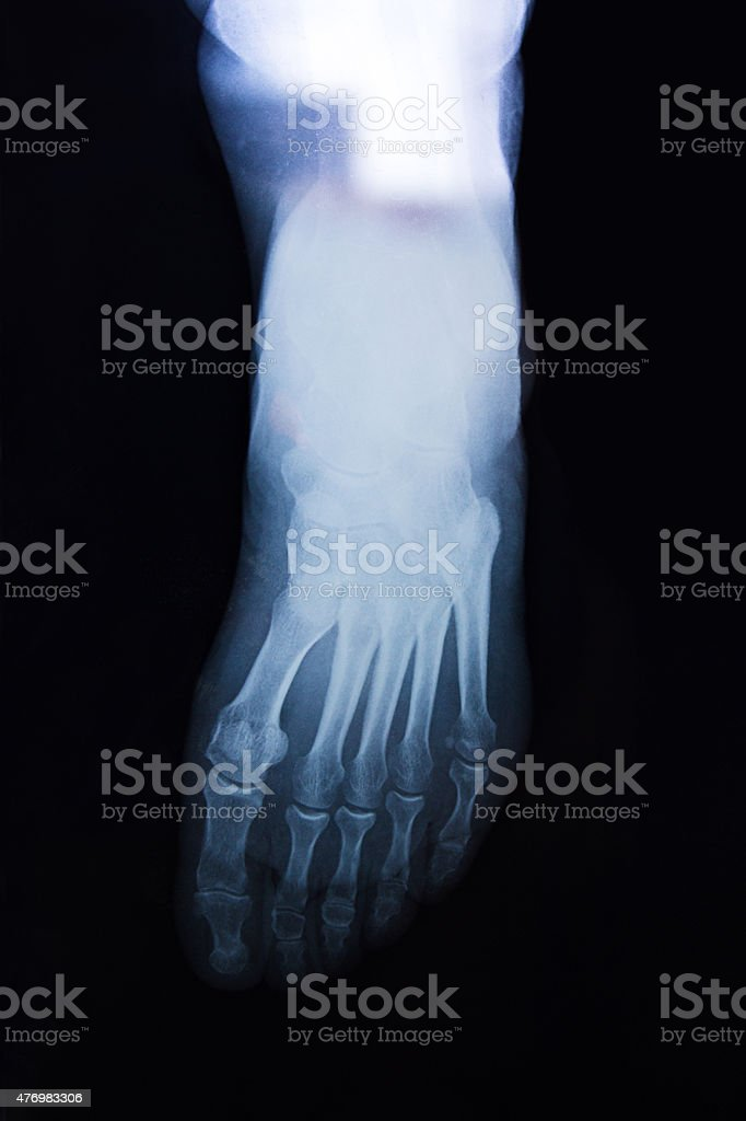 Front view of human foot's x-ray on a black background stock photo