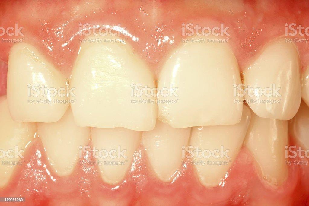 Frontal teeth stock photo