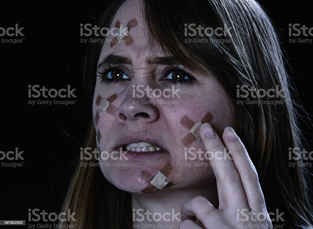 Frowning woman touching the many adhesive bandages on her face stock photo