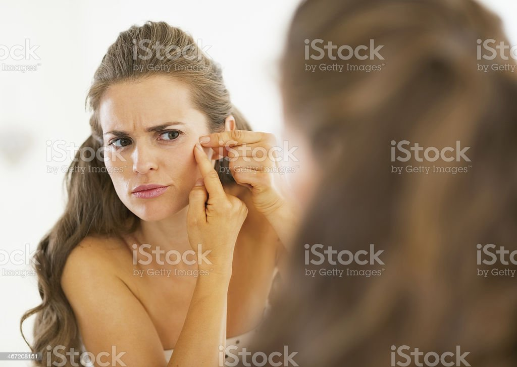 frustrated young woman squeezing acne stock photo