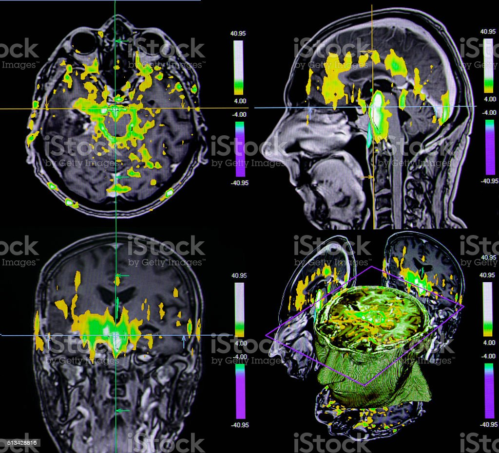 Functional brain MRI stock photo
