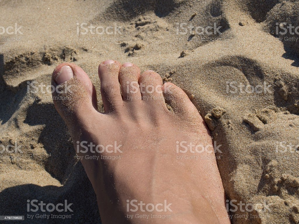 Fungal Nail Infection Onychomycosis stock photo