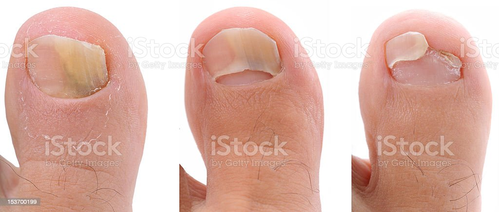 Fungi Nail royalty-free stock photo