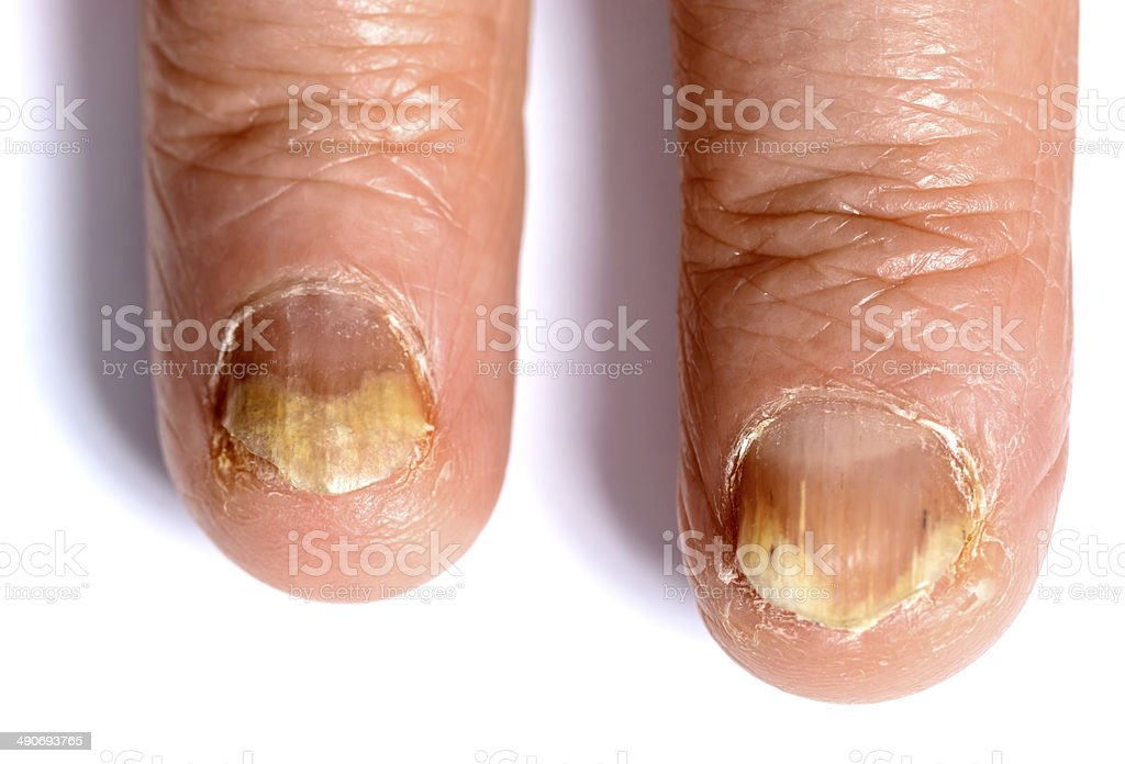 fungoid disease on fingers stock photo