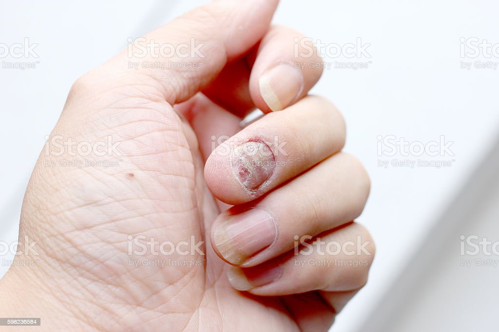 Fungus Infection on Nails Hand, Finger with onychomycosis. stock photo