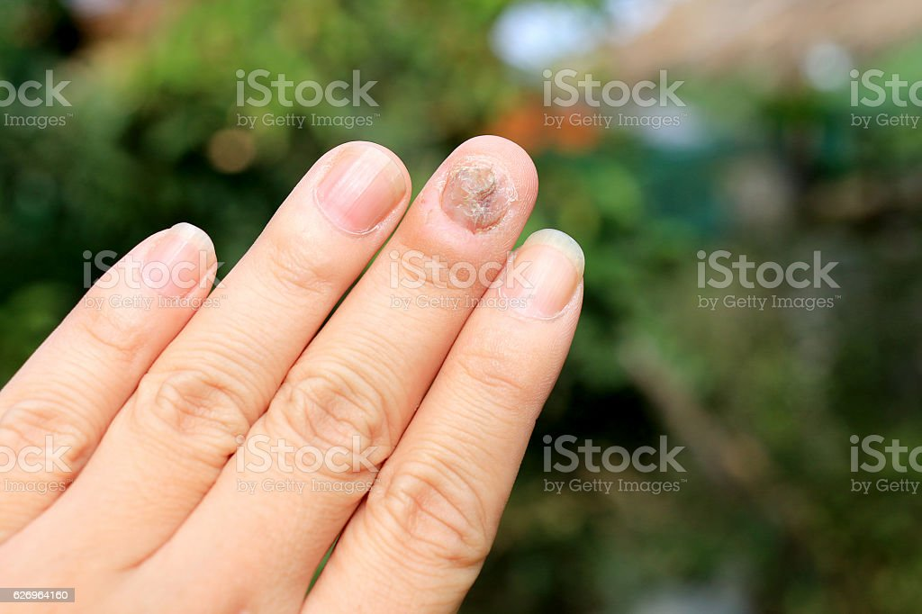 Fungus Infection on Nails Hand, Finger with onychomycosis stock photo