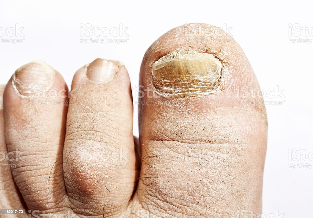 Fungus infection on nails stock photo