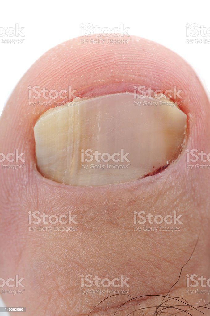 Fungus infection royalty-free stock photo
