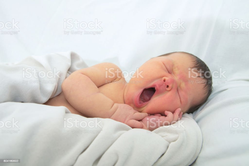 funny baby face,newborn with jaundice on white blanket, infant healthcare stock photo