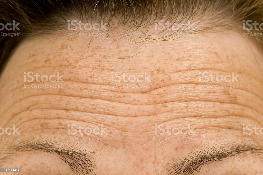 Furrowed Brow of Worried Person stock photo