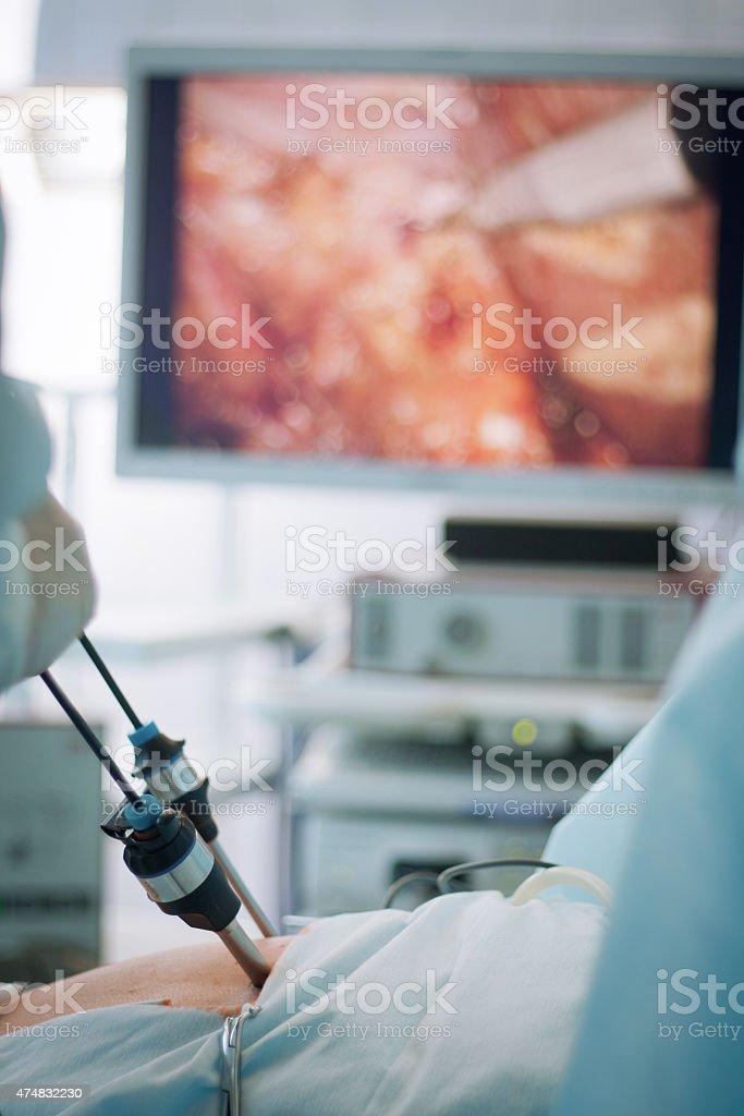 gallbladder removal stock photo