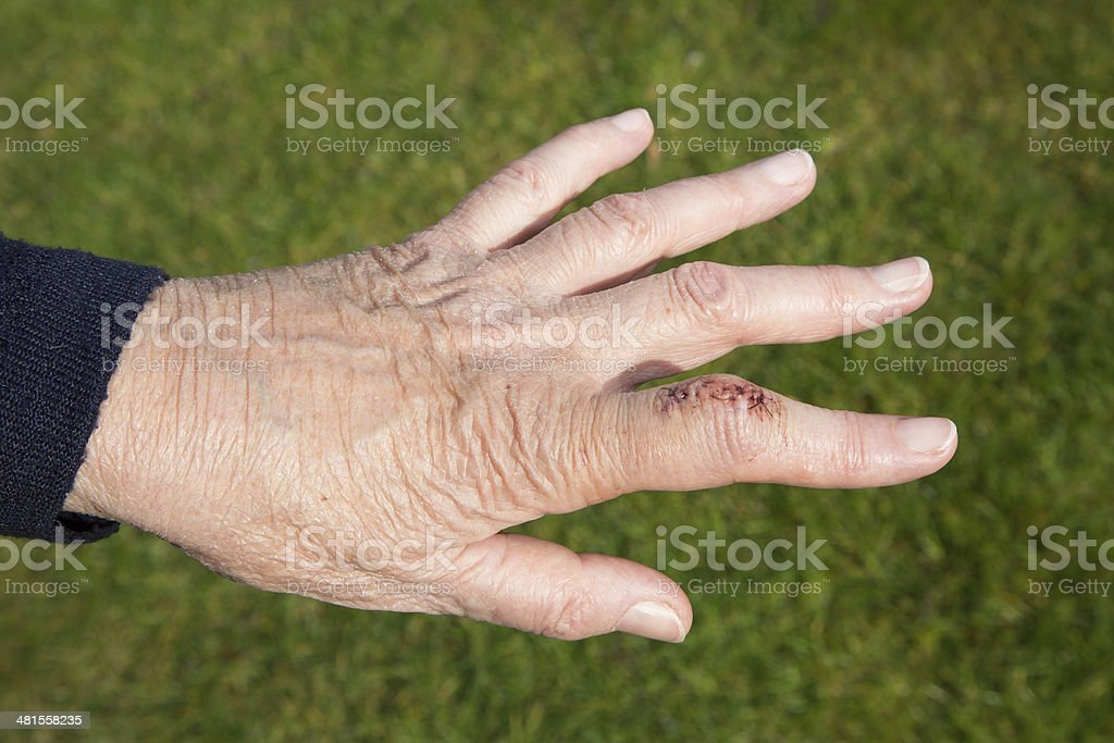 Ganglion cyst three days after surgery stock photo