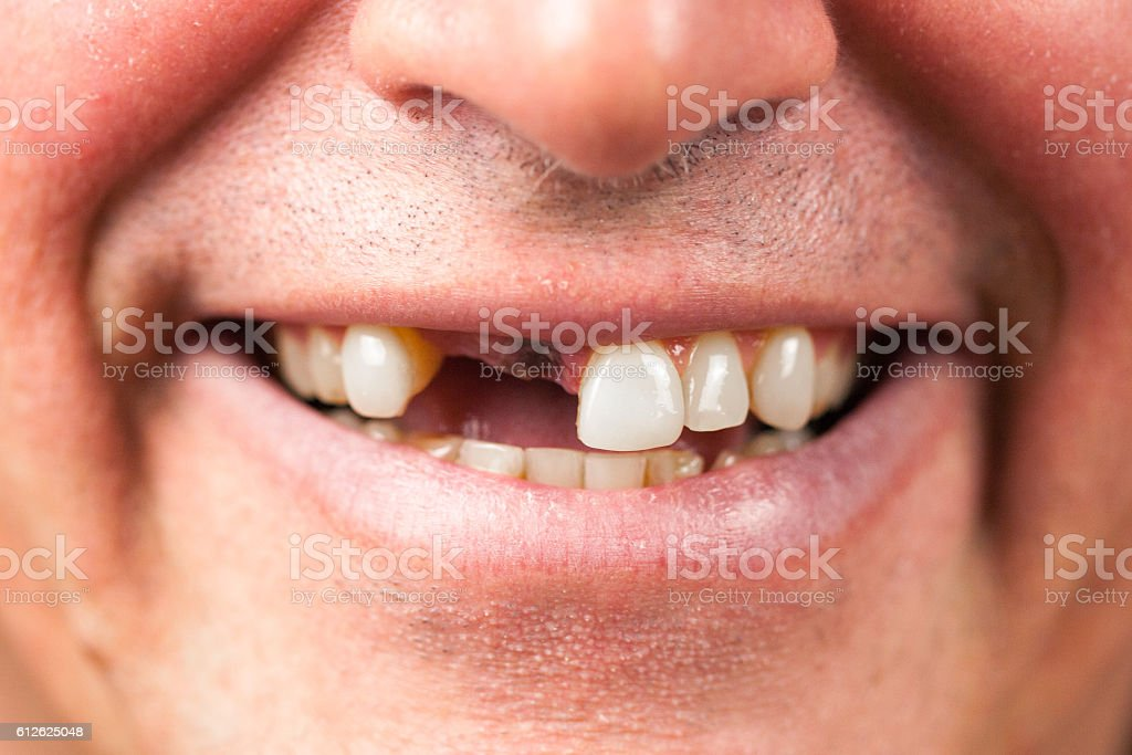 Gap Toothed Smile stock photo