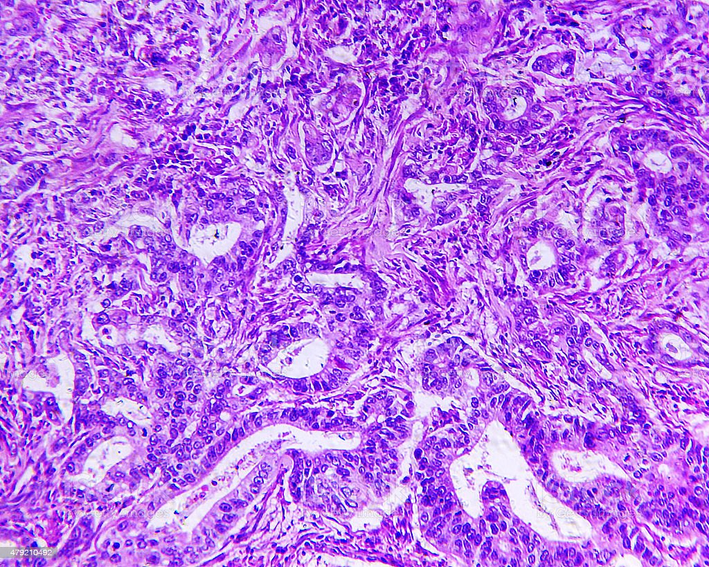 Gastric adenocarcinoma of a human stock photo