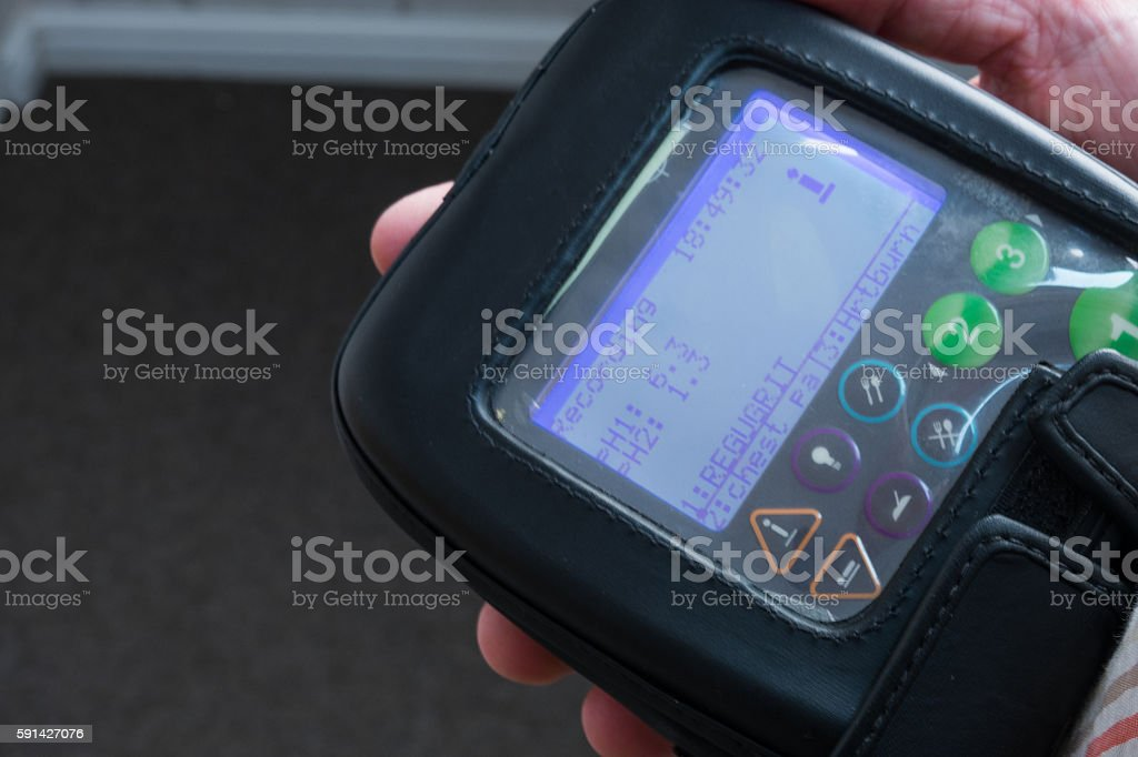 Gastroesophageal acid reflux test equipment stock photo
