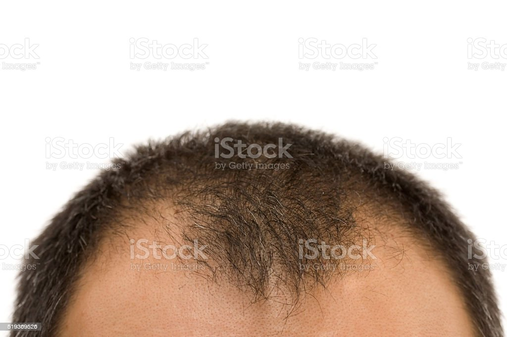 getting bald stock photo