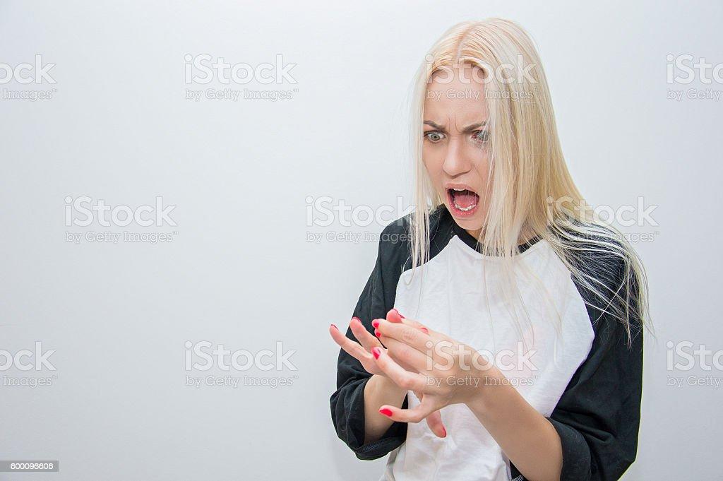 Girl broke a fingernail on her hand stock photo
