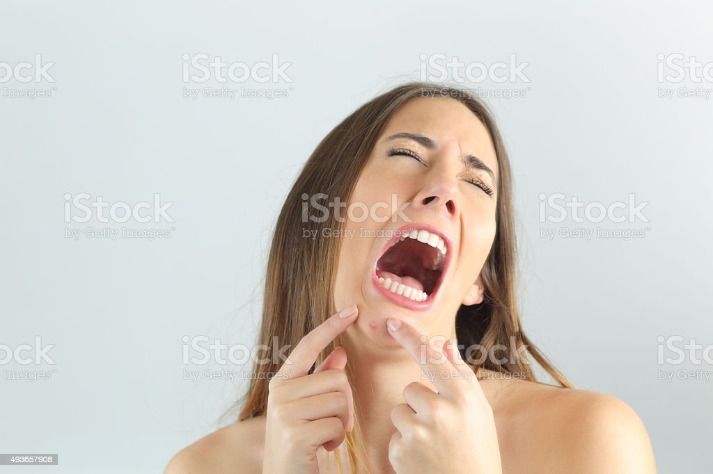 Girl crying while pressing a pimple on her chin stock photo