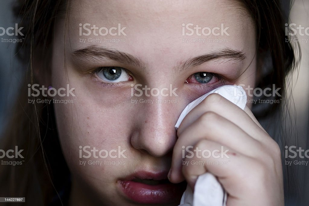 Girl holding tissue to her pink eye stock photo
