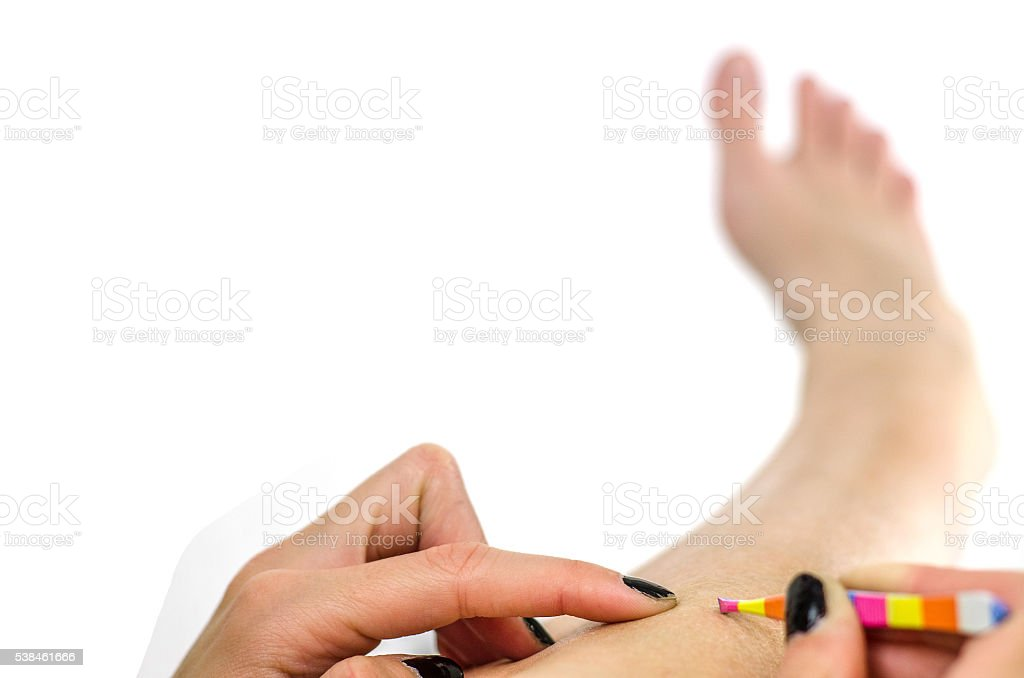 girl pulls the hair from their legs with tweezers , trichotillom stock photo