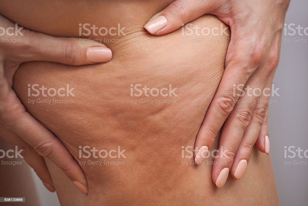 Girl shows holding, pushing the skin of the legs cellulite. stock photo