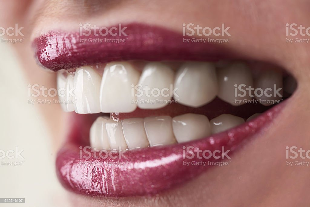 Girl smiling with implants stock photo
