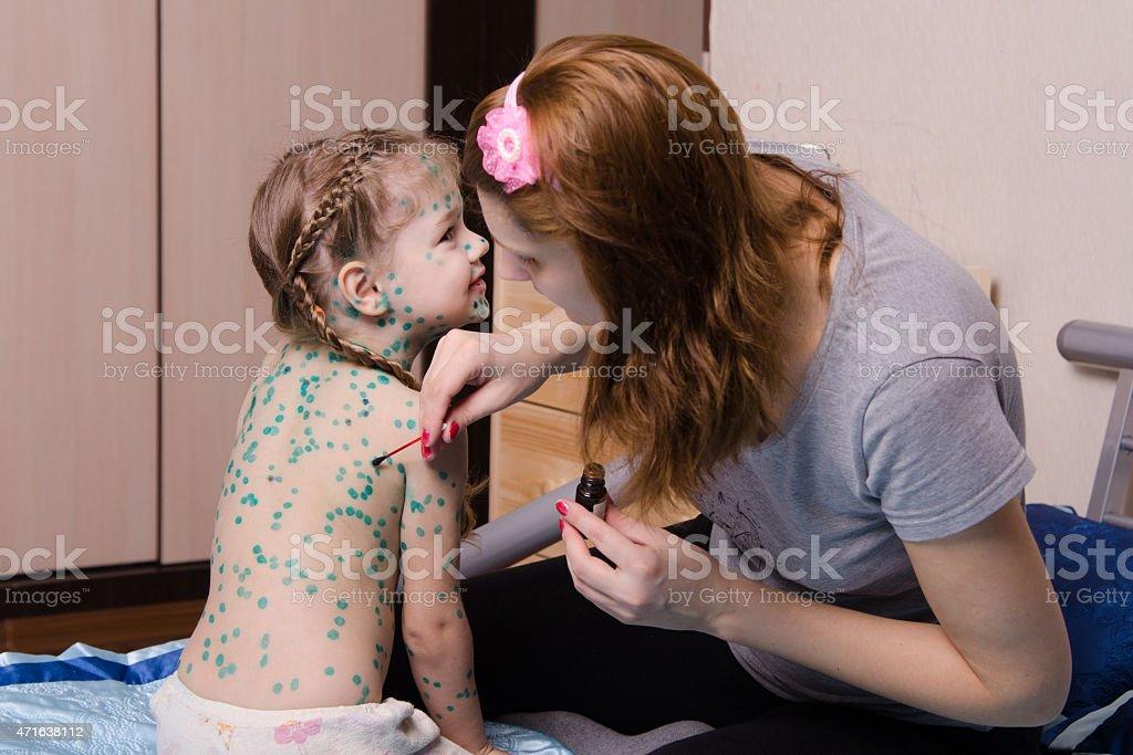 Girl suffering from chickenpox sores mom misses zelenkoj stock photo