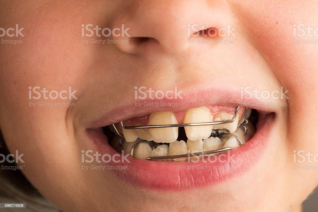 Girl wearing an orthodontic dental apparatus stock photo