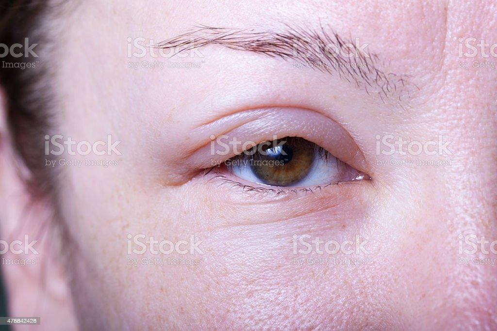 girl with allergenic edema stock photo