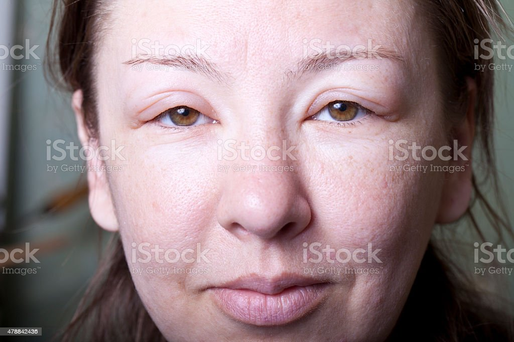 girl with allergenic edema stock photo