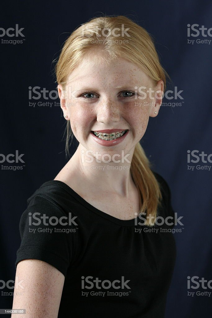 girl with braces smiling stock photo