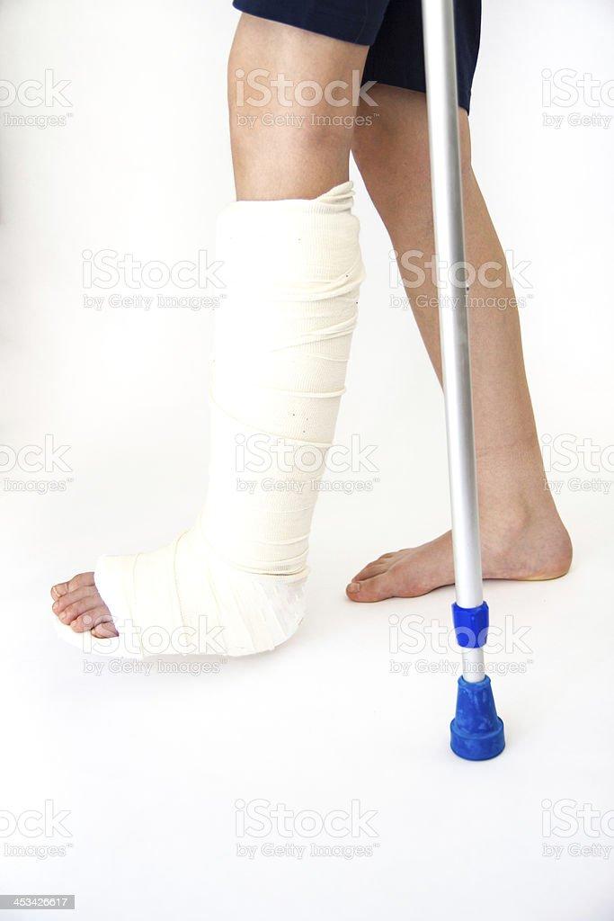 Girl with broken leg stock photo