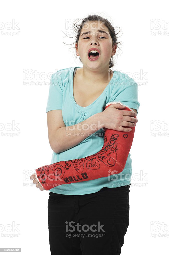 Girl with plaster cast royalty-free stock photo