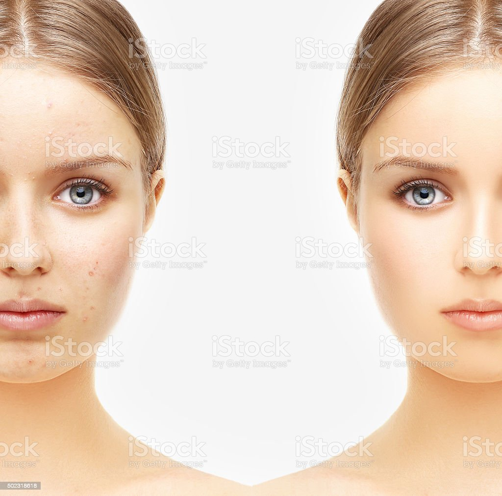 Girl with problem and clear skin. stock photo